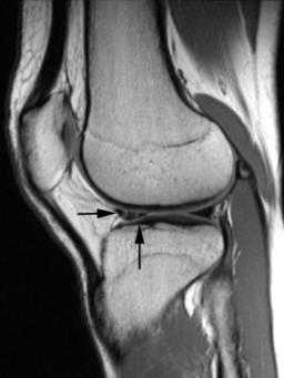 Not my knee, but essentially, that's where the tear is.
